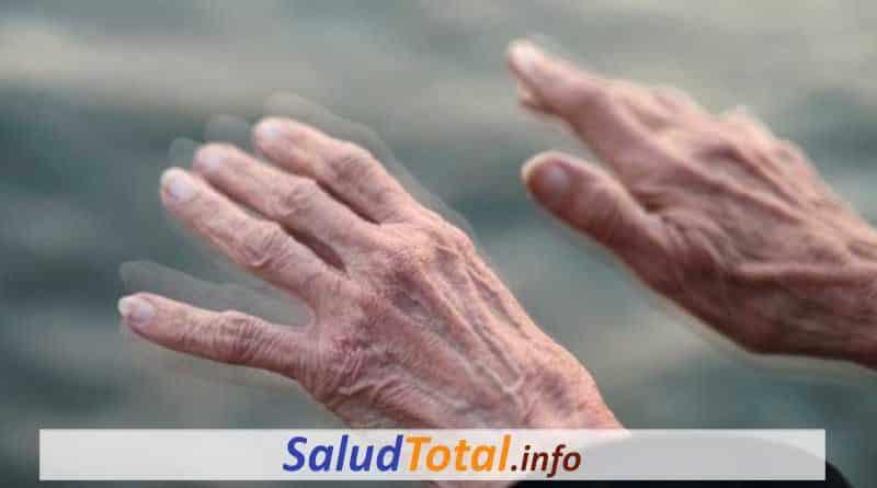 Etapas del Parkinson