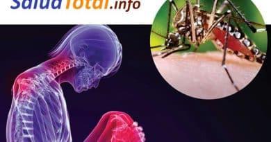 el virus chikungunya