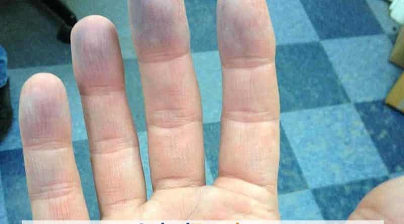 cianosis periférica