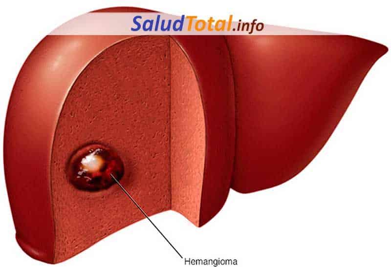 Hemangiomas Hepáticos