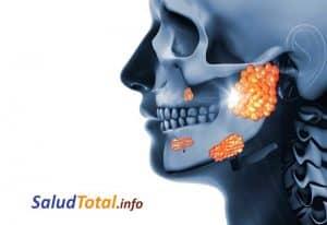 infección de las glándulas salivales