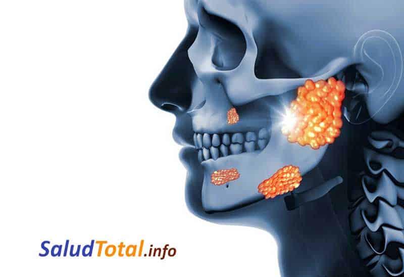 infeccion de las glandulas salivales