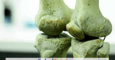 injertos óseos