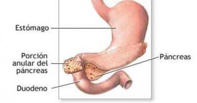 Páncreas Anular