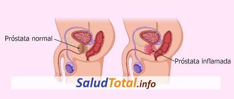 prostatitis crónica
