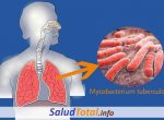 Todo Lo Que Necesitas Saber Sobre La Tuberculosis