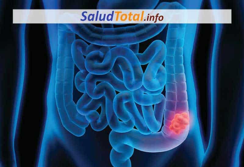 que son los pólipos del colon