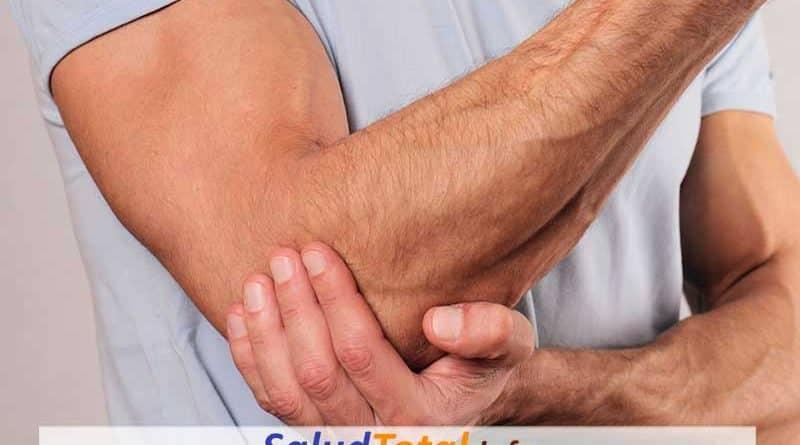 sindrome del tunel cubital