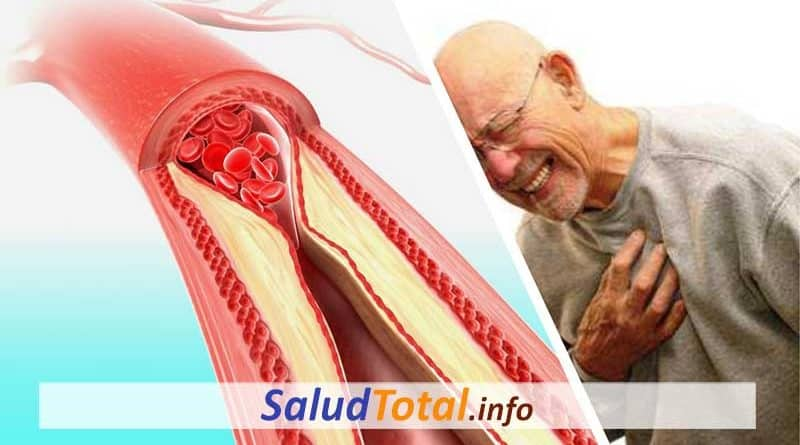 como limpiar arterias rapidamente