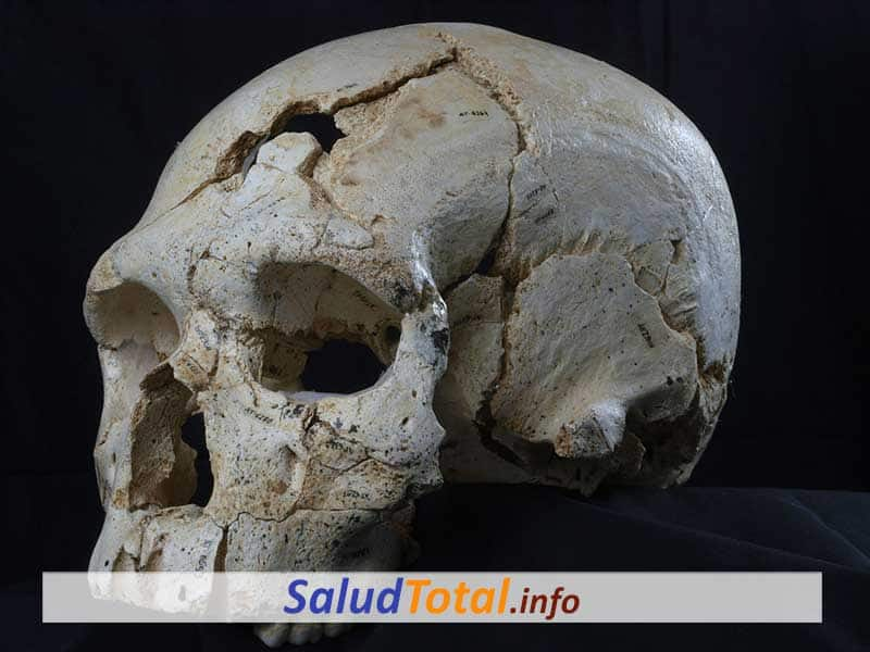 fracturas de cráneo